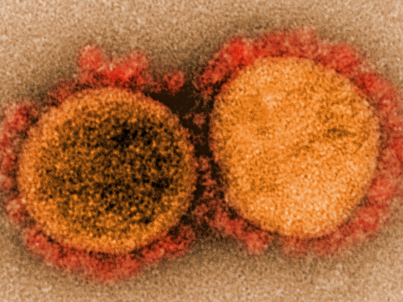 Transmission electron micrograph of SARS-CoV-2 virus particles